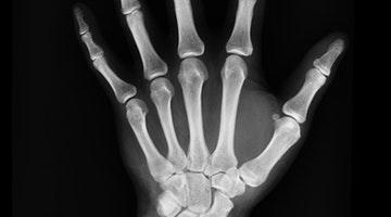 'Pointless' Bones, 'Flawed' Birth Spacing, and 'Broken' Genes